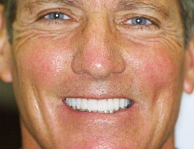 Top Teeth Whitening Professionals Near Me
