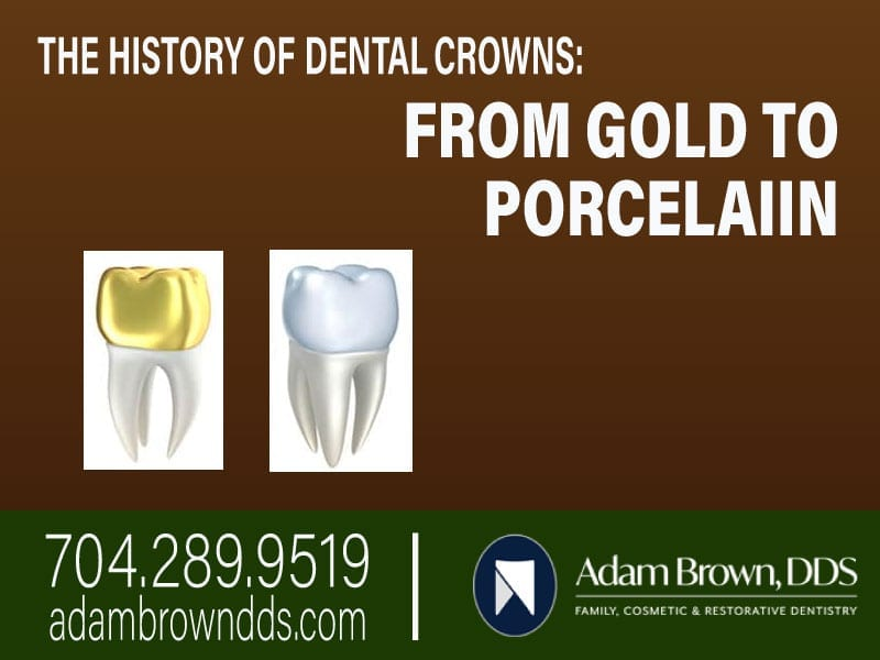 The History Of Dental Crowns: From Gold To Porcelain